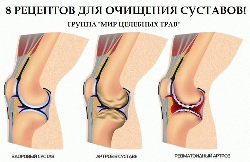 как лечить суставы бедра