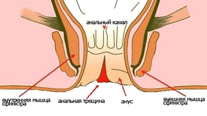 analnaya-treshina-kakoe-lechenie