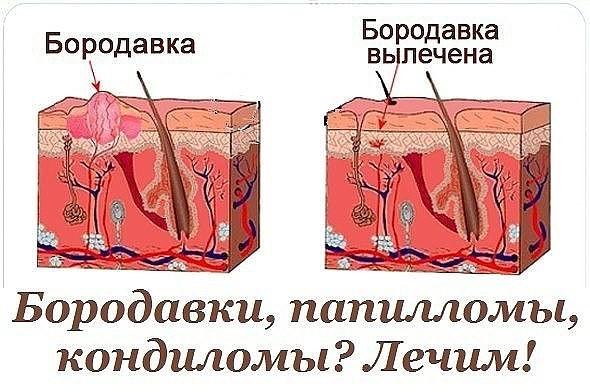 kak-lechit-vaginalnie-borodavki