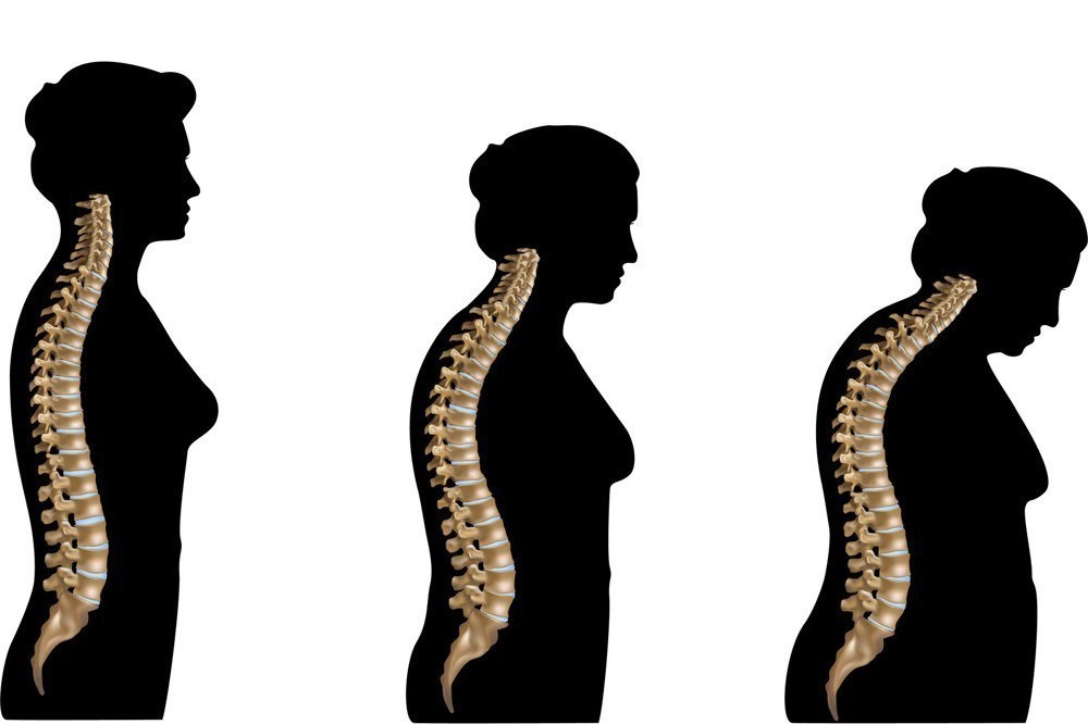 understanding how osteoporosis occurs and affects the human bones Osteoporosis affects the entire skeleton, but the spongy bone of the spine is most vulnerable for this reason, compression fractures of the vertebrae are common in people with osteoporosis the femur, particularly its neck, is also susceptible to fracture (a broken hip.