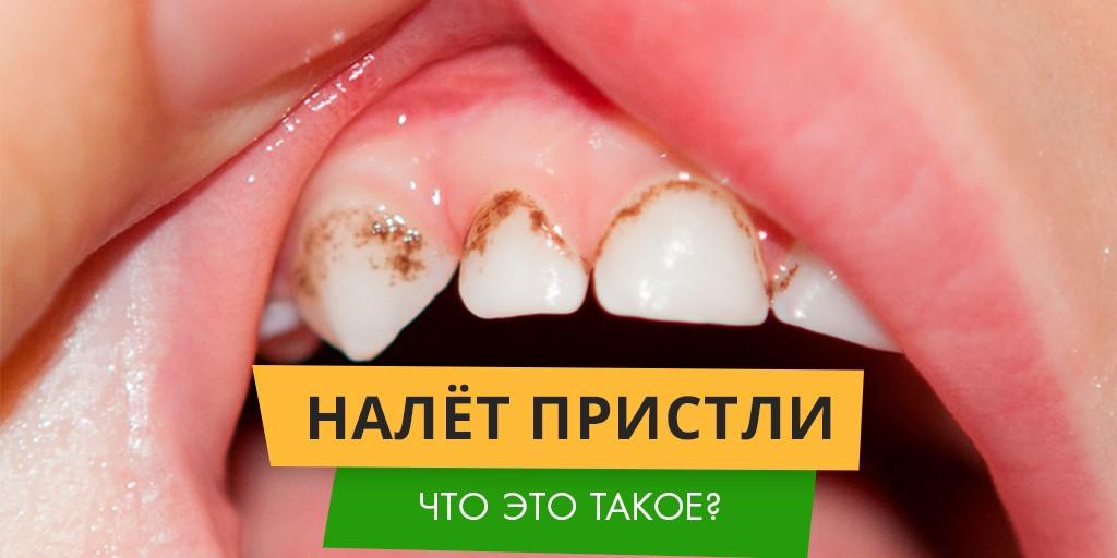 Темный налет на зубах убрать в домашних условиях